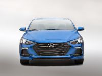 2017 Hyundai Elantra Sport , 1 of 15
